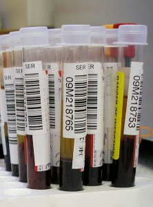A simple blood test can check for the presence of Syphilis in the body.